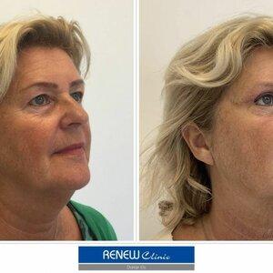 Renew Clinic image 1