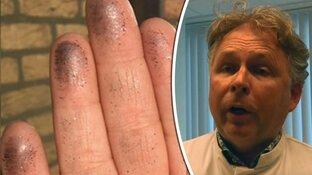 Longarts waarschuwt voor chronische blootstelling aan zware metalen bij grafietregens